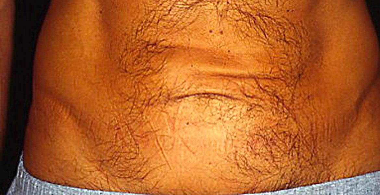 Male mini tummy tuck