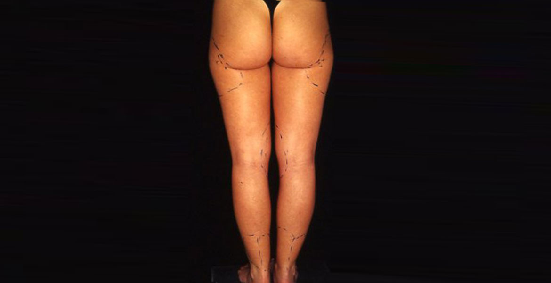 Legs liposculpture