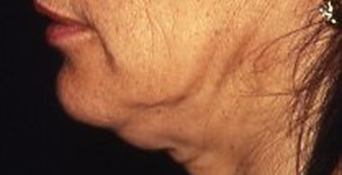 Face and neck Lifting