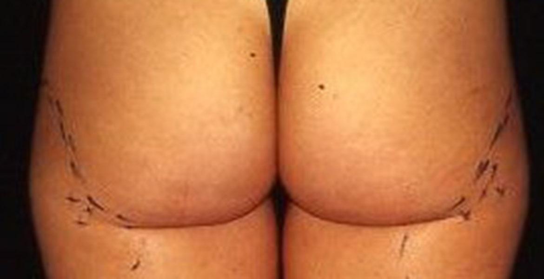 Buttock contouring liposculpture