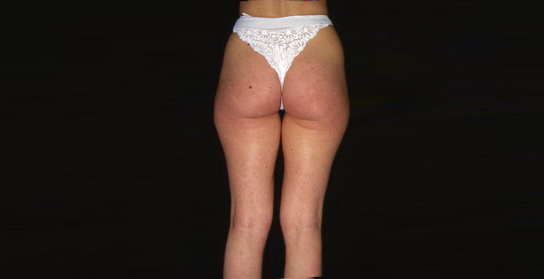 Upper legs and buttocks liposculpture