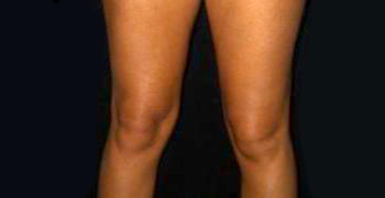 Knees liposculpture