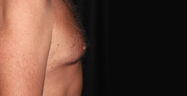 Liposuction and glandular reduction