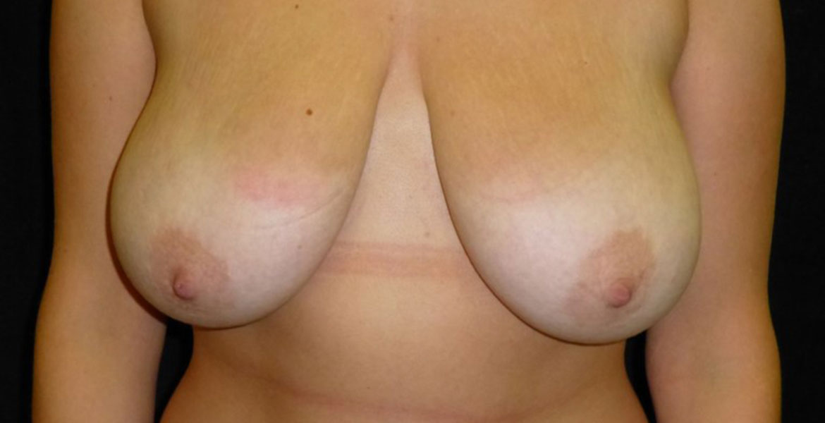 Mastopexy and reduction