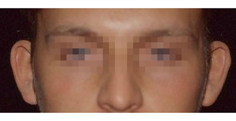Bilateral otoplasty